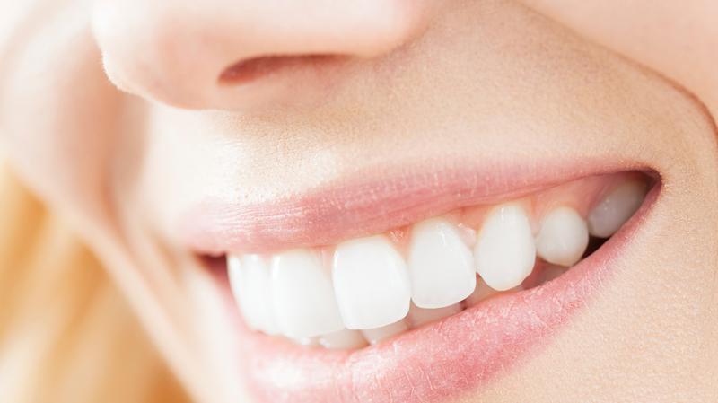 Comment garder de belles dents ?