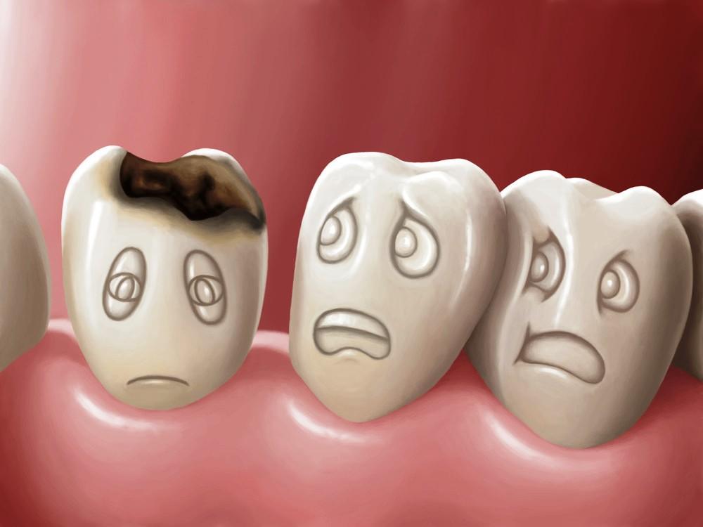 Idée reçue N°3 : la carie dentaire est une fatalité