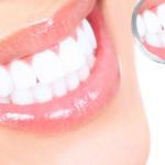 De quoi sont constituées les dents?