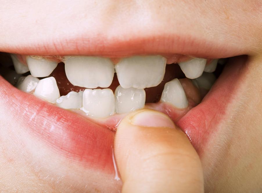 Idée reçue N°5 : Inutile de soigner les dents de lait car elles vont tomber !