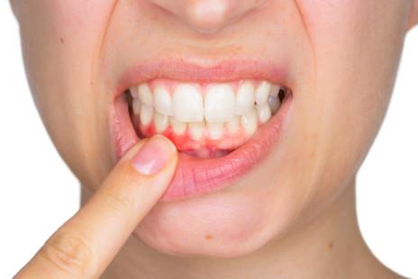 Traitement de la gingivite